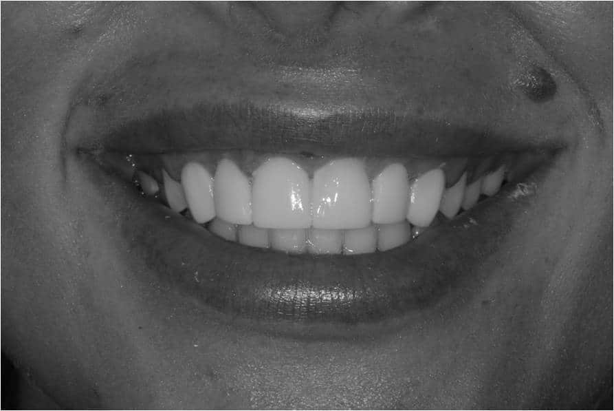 What is Dental Bonding? Image