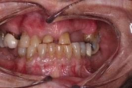 Dental Bonding veneers before and after