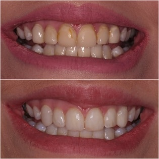 Badly worn teeth after dental bonding