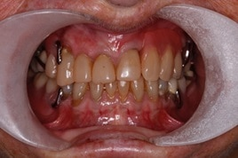 Badly worn teeth before dental bonding