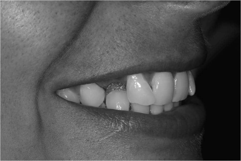 Are you not smiling because of missing teeth? Image