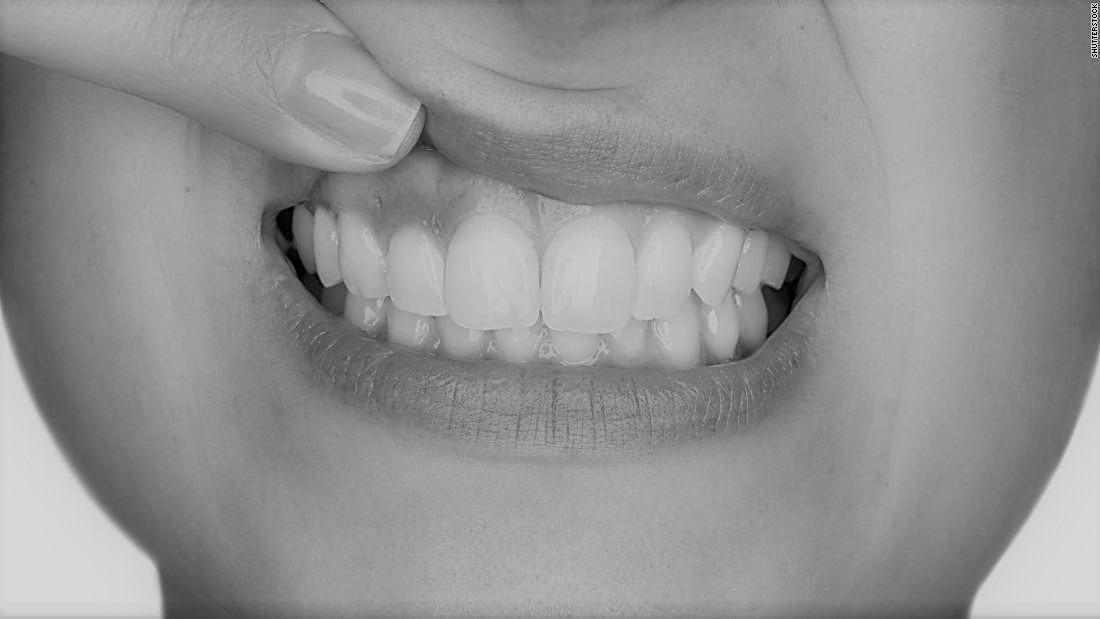 What is Gum Disease? Thumbnail