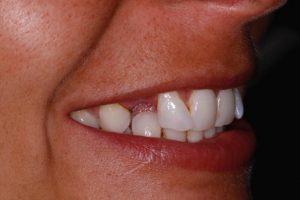Before a dental bridge