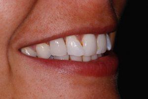 After Dental Bridges from Carillon