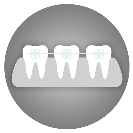 Teeth Straightening - cosmetic dentistry