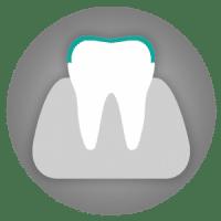 Tooth veneers - Cosmetic dentistry