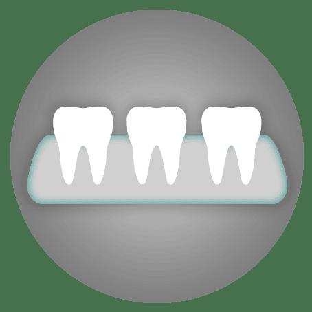 Dental Treatments: Dentures