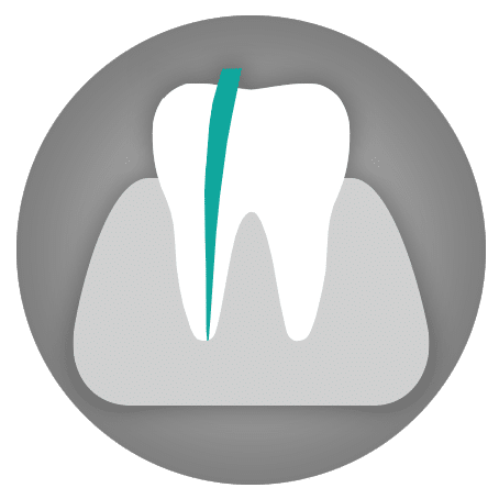 Dental Treatments: Root Canal Treatment