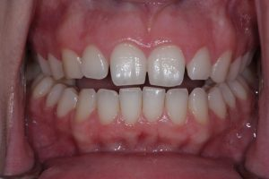 Quick Straight teeth before image