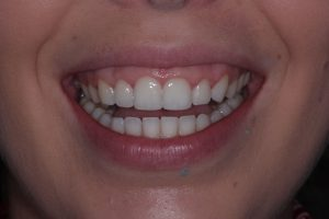 Quick Straight teeth after image