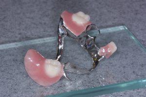 chrome denture