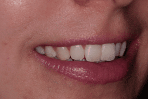 Icon white spot treatment: After 2