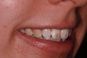 Icon white spot treatment: Before 2