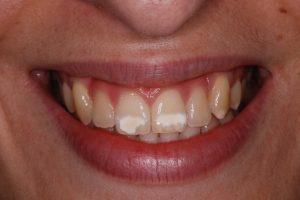 Icon white spot treatment: Before