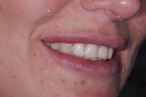 Dental Veneers -before