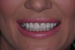Dental Veneers -after