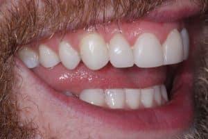 Enlighten Teeth Whitening After