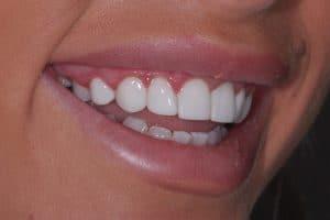 Composite dental bonding - after