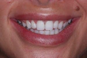 Composite dental bonding- before