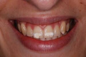 Polar Teeth Whitening Before