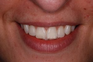 Polar Day Teeth Whitening After