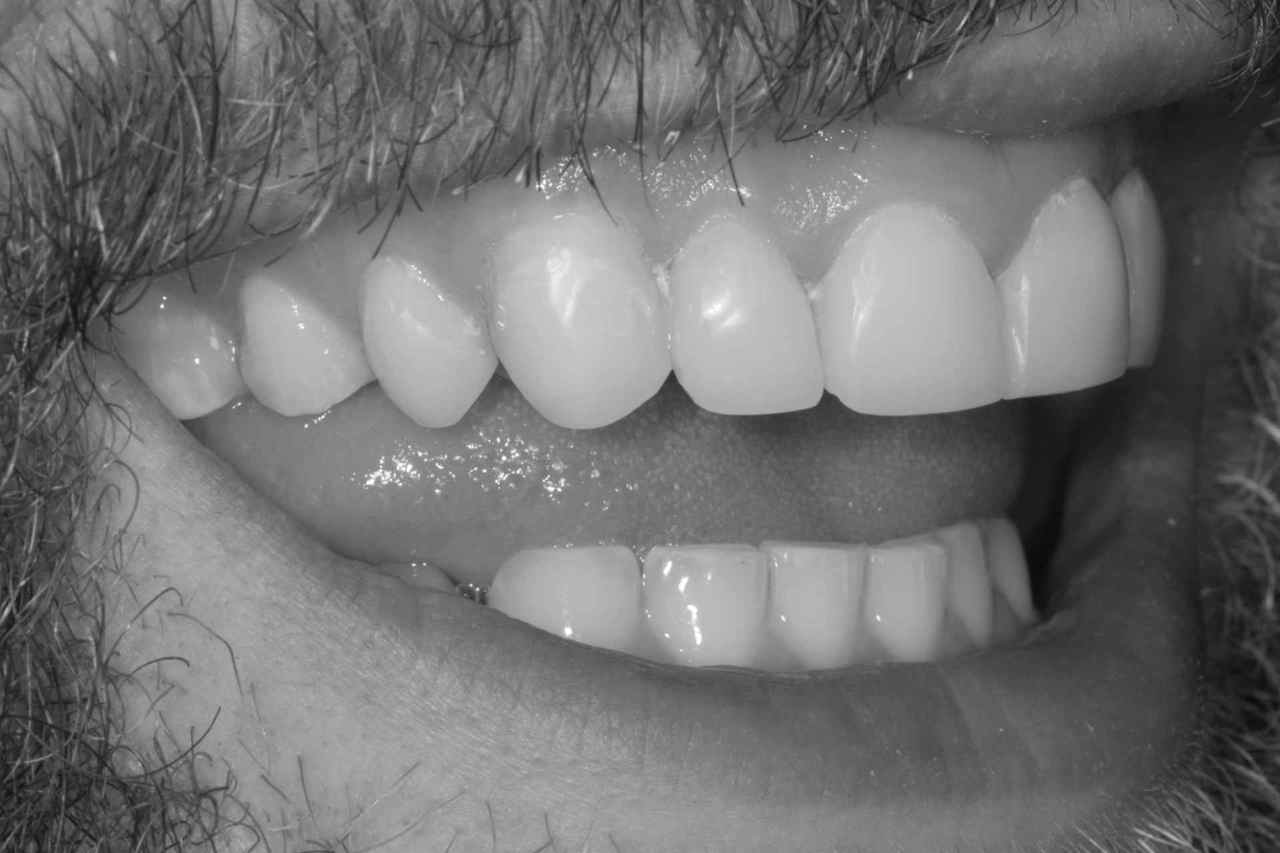Do you suffer with sensitive teeth? Thumbnail