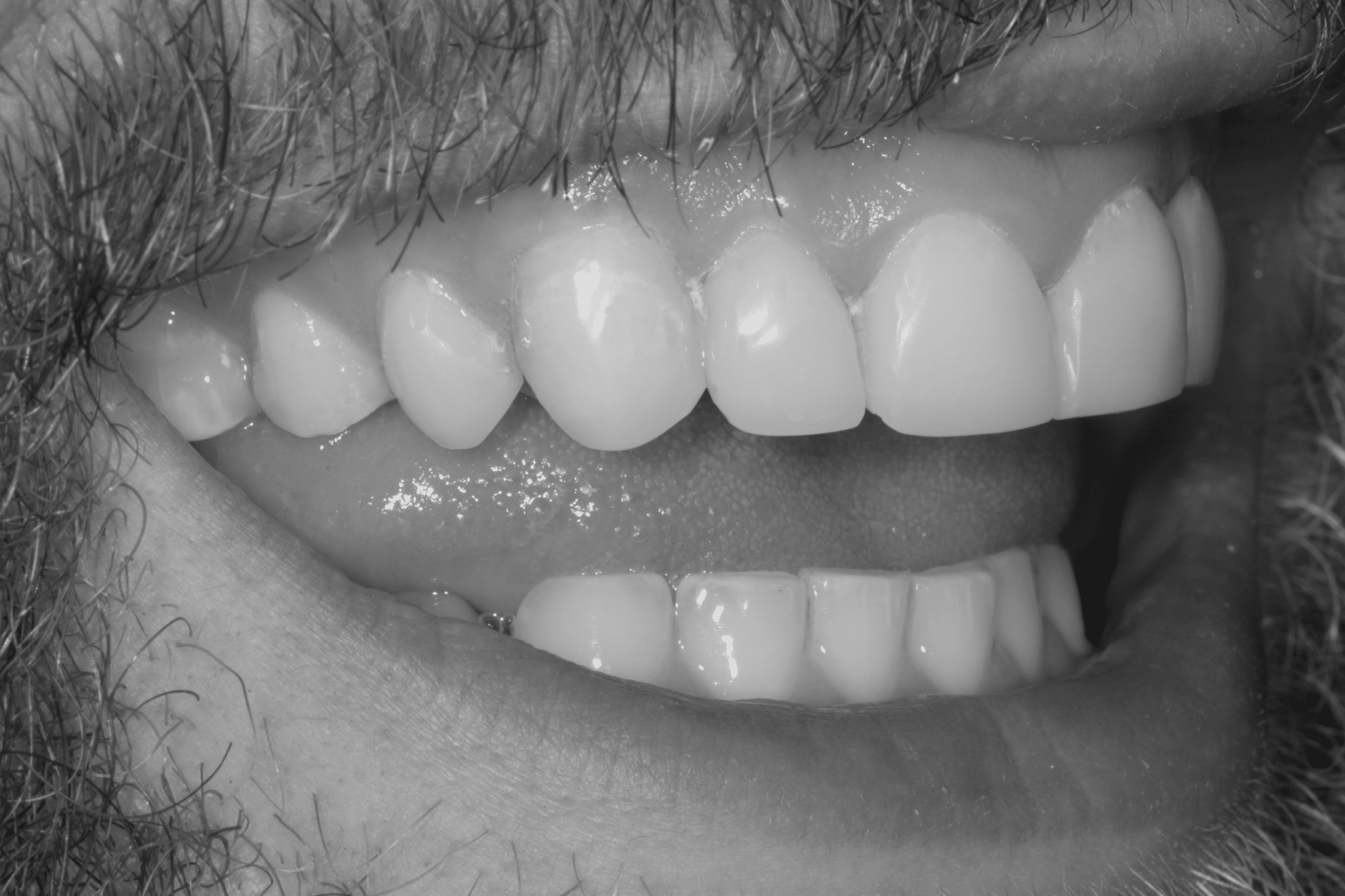 Tooth Sensitivity Treatment and Causes Thumbnail