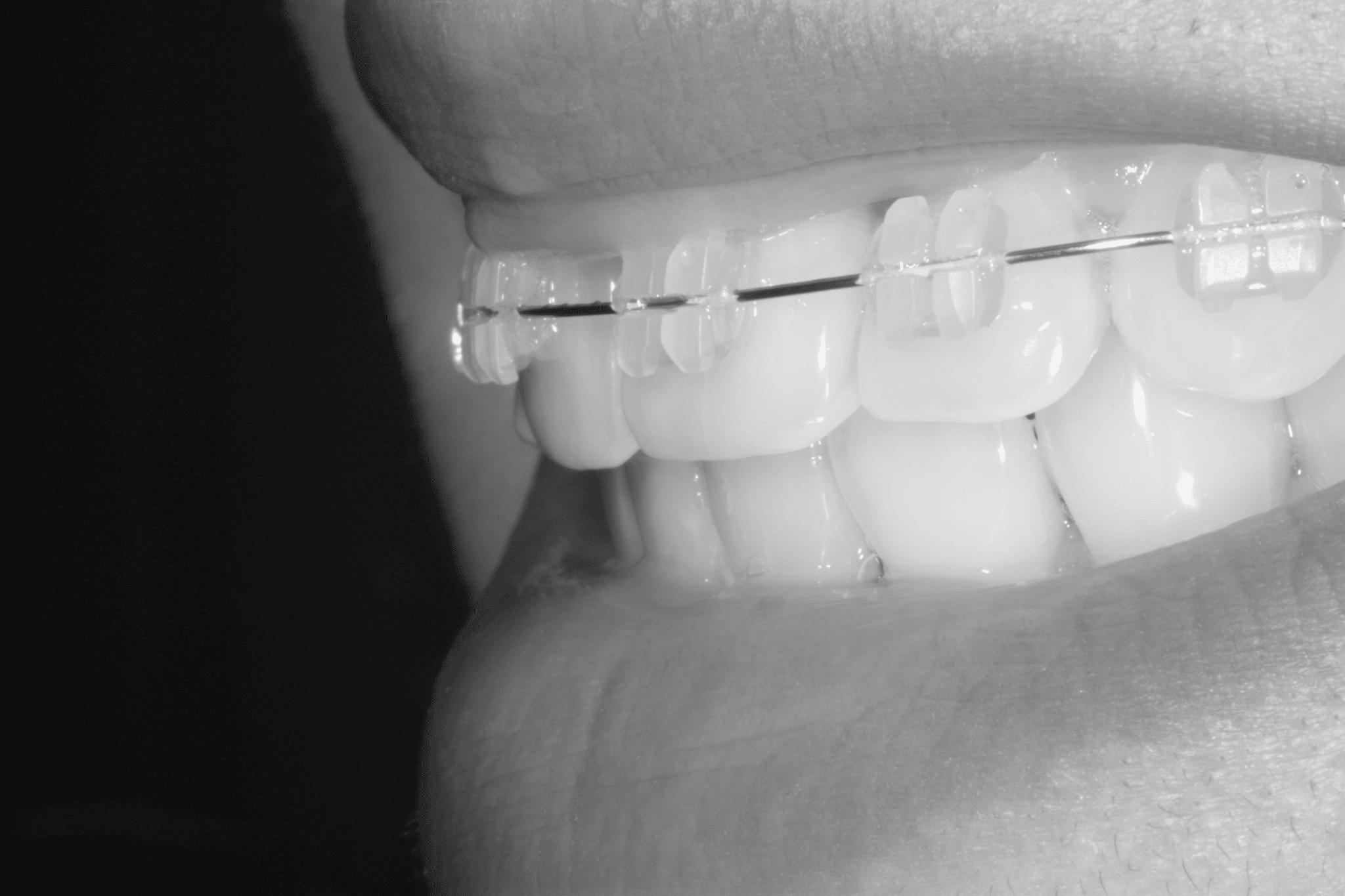 My Quick Straight Teeth journey Image
